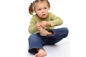 Мозоли и натоптыши у детей